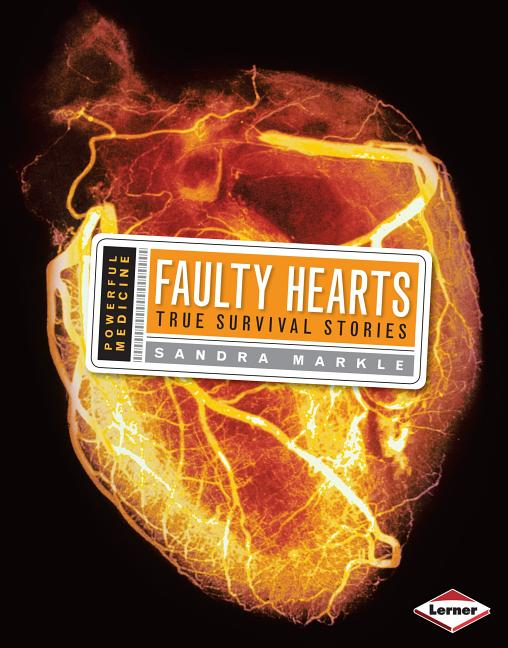 Faulty Hearts: True Survival Stories