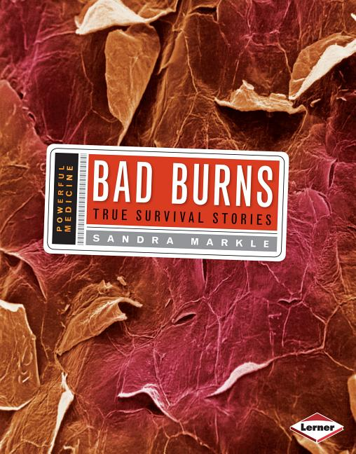 Bad Burns: True Survival Stories