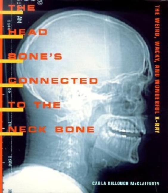 The Head Bone's Connected to the Neck Bone:  The Weird, Wacky, and Wonderful X-ray